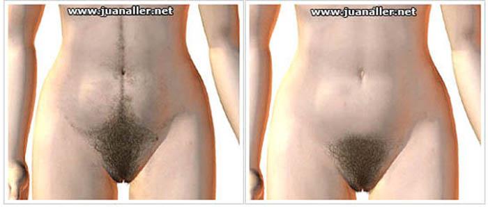 Mujer operada de los pechos - 2 part 2